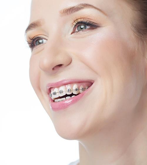 A young female smiling with metal braces lining her top row of teeth