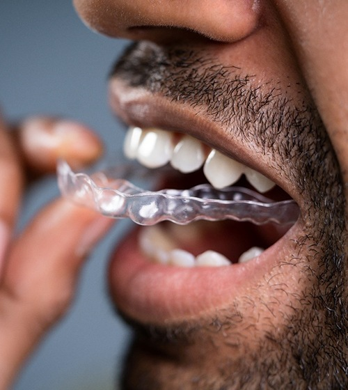 A man inserting an Invisalign aligner into the top arch of his mouth
