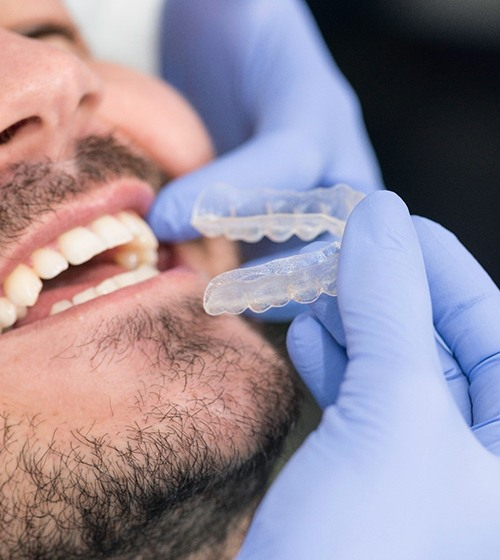 A man seated in a dentist's chair and preparing to be fitted with an Invisalign aligner