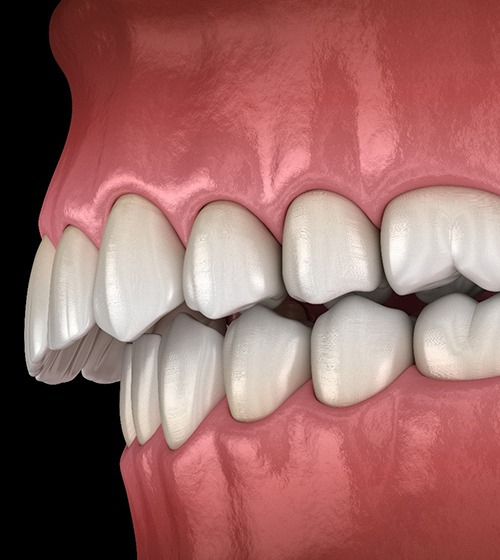Illustration of overbite orthodontic problem against black background