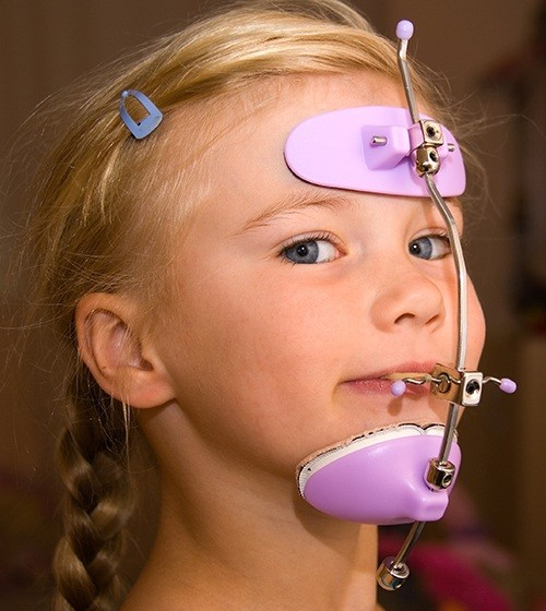 Young girl with dentofacial orthopedic device in place