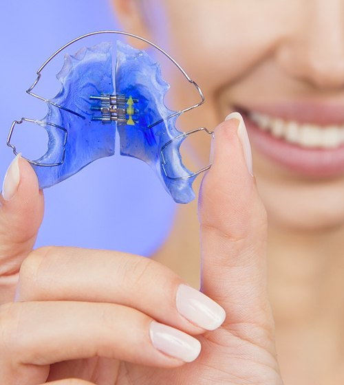 An up-close image of a person holding a blue anterior biteplate retainer