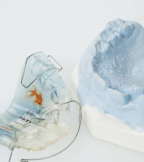 A posterior occlusal coverage retainer sitting next to a mouth mold