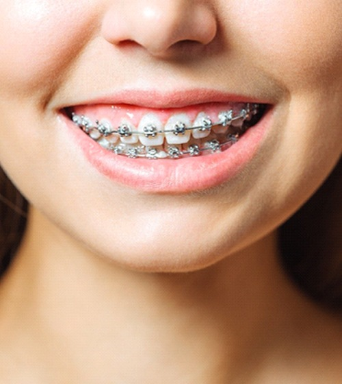 Woman who had reasons to seek orthodontic treatment in Richardson